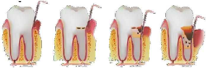 οδοντιατρος αθηνα